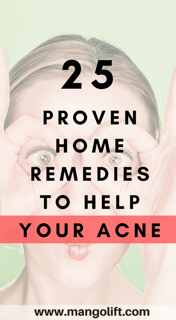 25 proven home remedies for acne pinterest