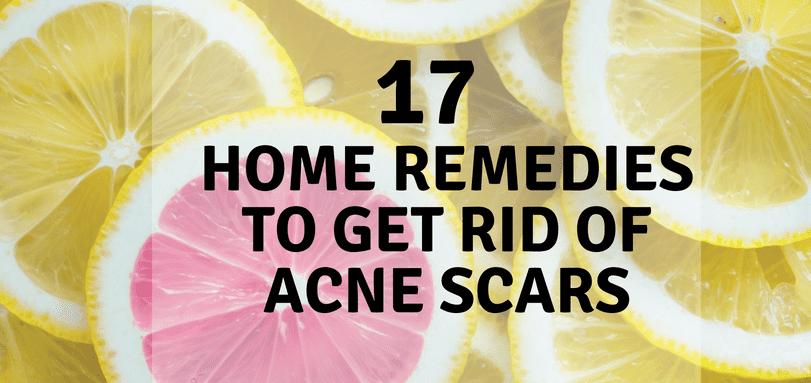 17 Home Remedies to Get Rid of Acne Scars