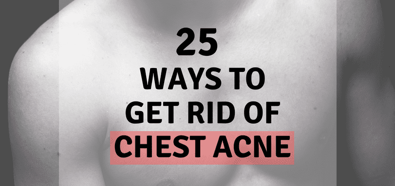 25 Ways to Get Rid Of Chest Acne