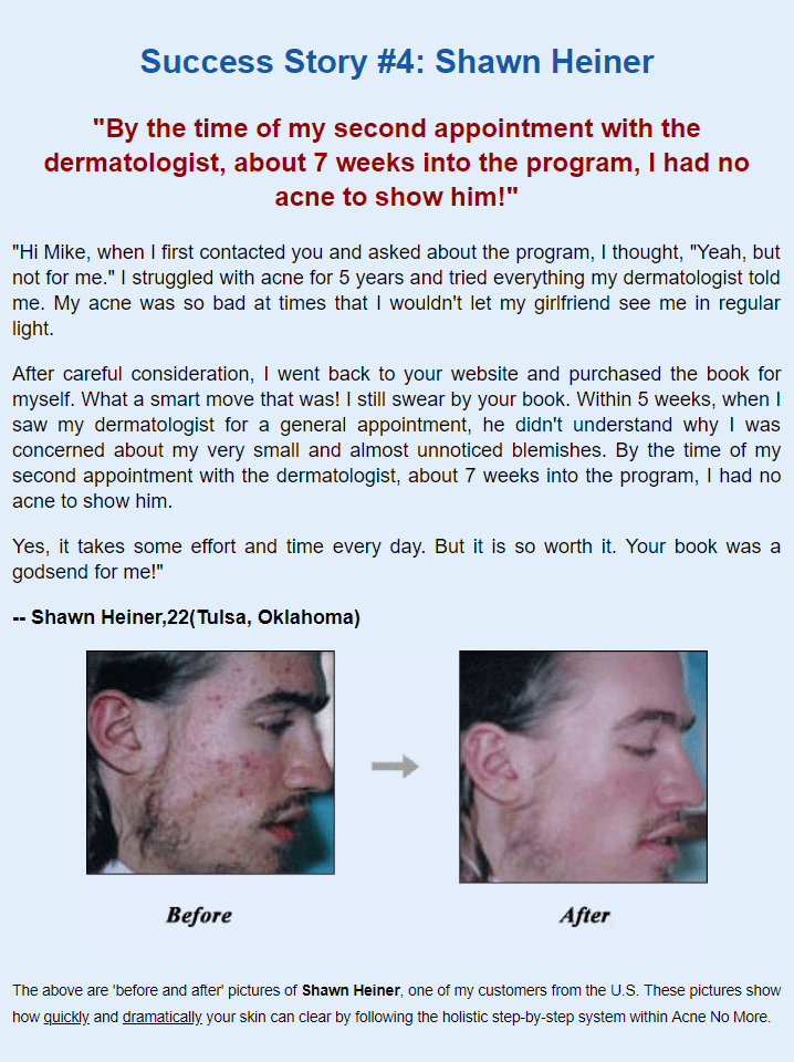 Acne No More Able Book