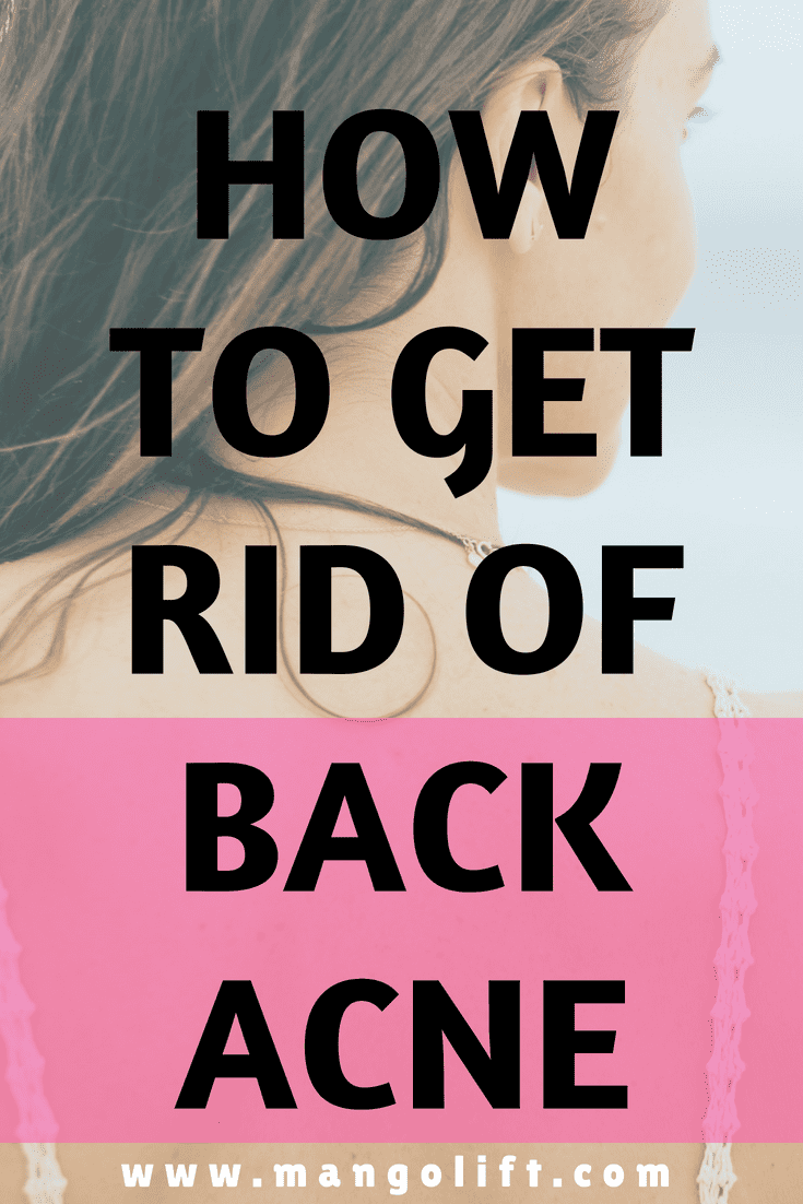 how to clear back acne